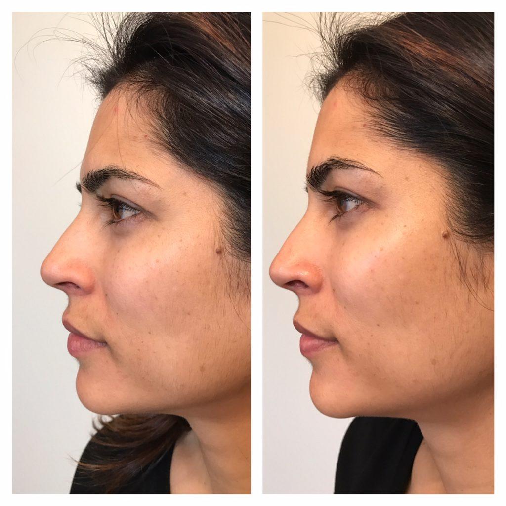 Le soin pour le visage Cellcosmet : rajeunissement et coup